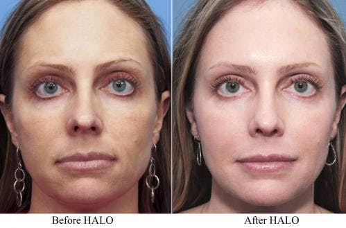 Laser Treatments Gallery - Patient 58214282 - Image 1