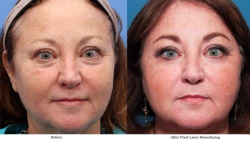 Laser Treatments Gallery - Patient 58214283 - Image 1
