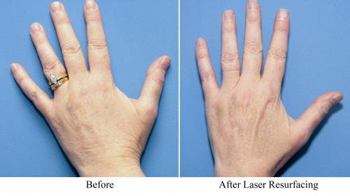 Laser Treatments Gallery - Patient 58214286 - Image 1