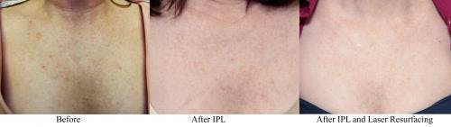 Laser Treatments Gallery - Patient 58214287 - Image 1