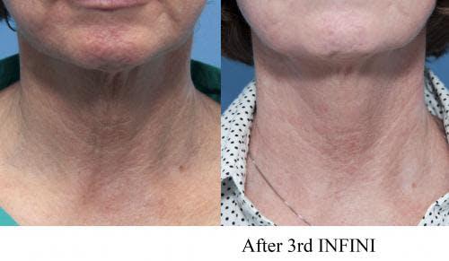 Infini Gallery - Patient 58214289 - Image 4
