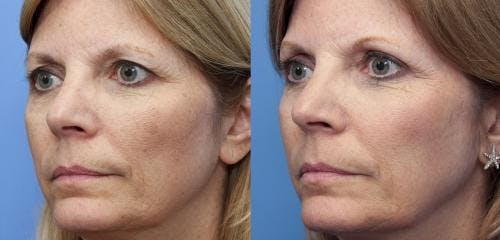 Laser Treatments Gallery - Patient 58214288 - Image 1