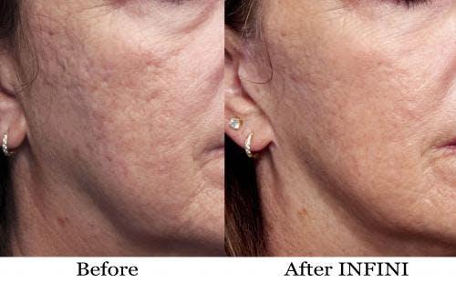 Infini Gallery - Patient 58214292 - Image 1