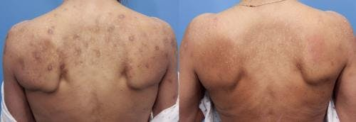 Laser Treatments Gallery - Patient 58214293 - Image 1