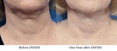 Infini Gallery - Patient 58214297 - Image 1