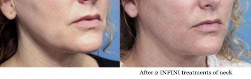 Infini Gallery - Patient 58214298 - Image 2