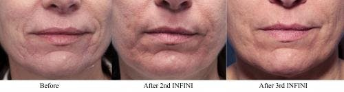 Infini Gallery - Patient 58214303 - Image 2