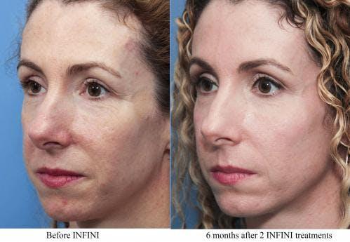 Infini Gallery - Patient 58214304 - Image 1