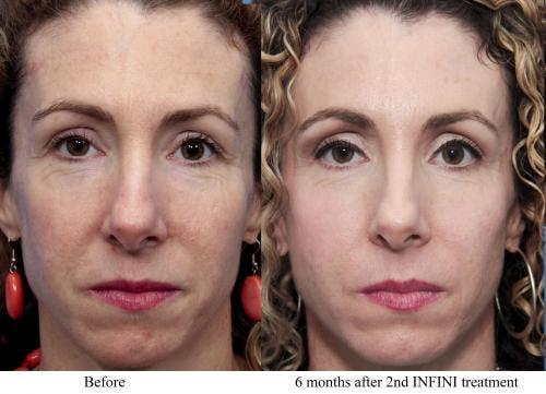 Infini Gallery - Patient 58214304 - Image 2