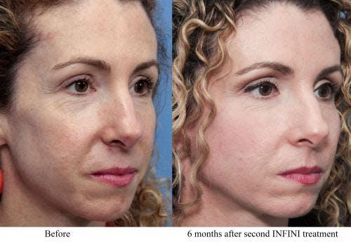 Infini Gallery - Patient 58214304 - Image 3