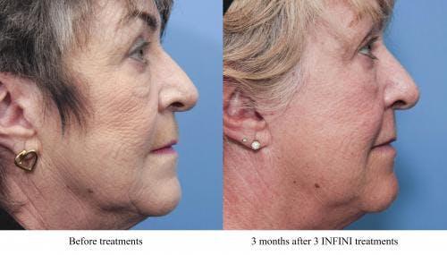 Infini Gallery - Patient 58214306 - Image 3
