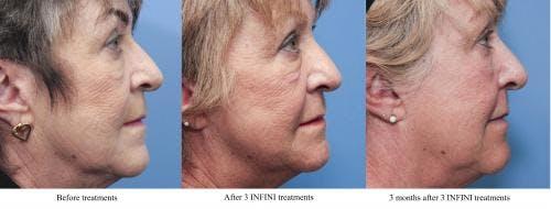 Infini Gallery - Patient 58214306 - Image 4