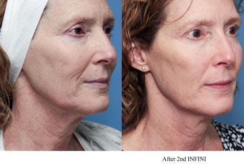 Infini Gallery - Patient 58214308 - Image 1
