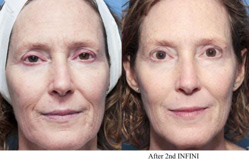Infini Gallery - Patient 58214308 - Image 2