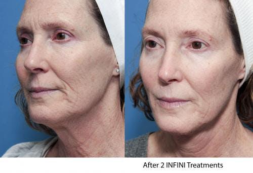 Infini Gallery - Patient 58214308 - Image 7