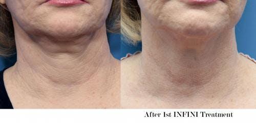 Infini Gallery - Patient 58214311 - Image 1