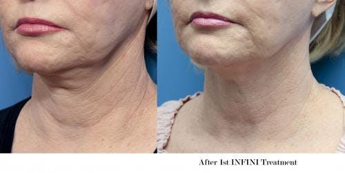 Infini Gallery - Patient 58214311 - Image 3