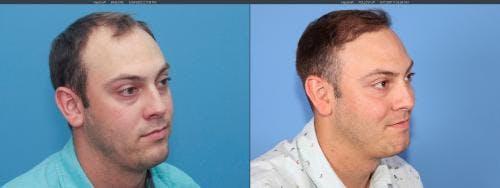 NeoGraft Hair Restoration Gallery - Patient 58214323 - Image 2