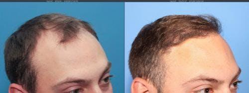 NeoGraft Hair Restoration Gallery - Patient 58214323 - Image 3