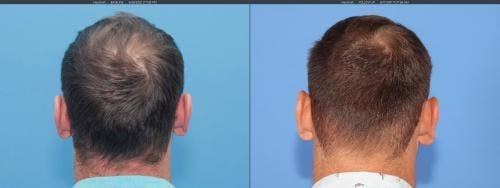NeoGraft Hair Restoration Gallery - Patient 58214323 - Image 4