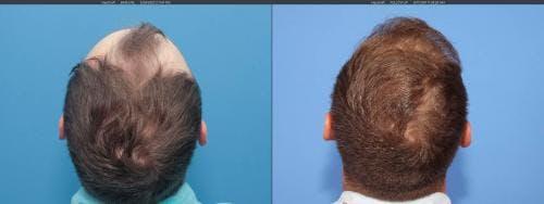 NeoGraft Hair Restoration Gallery - Patient 58214323 - Image 5