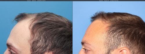 NeoGraft Hair Restoration Gallery - Patient 58214323 - Image 6