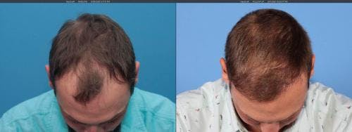 NeoGraft Hair Restoration Gallery - Patient 58214323 - Image 7