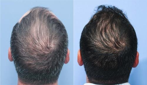 NeoGraft Hair Restoration Gallery - Patient 58214324 - Image 2