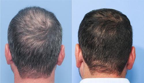 NeoGraft Hair Restoration Gallery - Patient 58214324 - Image 3