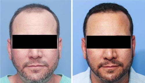 NeoGraft Hair Restoration Gallery - Patient 58214324 - Image 4