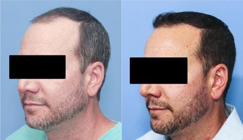 NeoGraft Hair Restoration Gallery - Patient 58214324 - Image 5