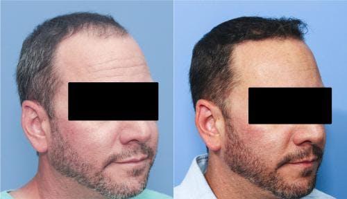 NeoGraft Hair Restoration Gallery - Patient 58214324 - Image 6