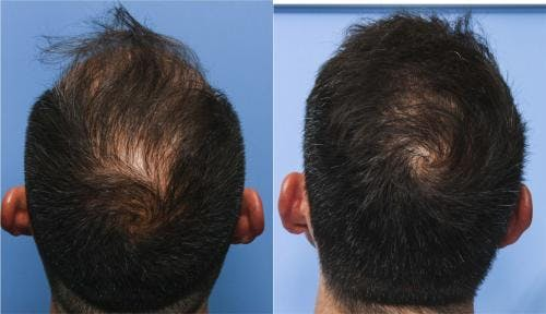NeoGraft Hair Restoration Gallery - Patient 58214325 - Image 2