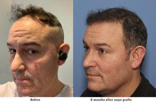 NeoGraft Hair Restoration Gallery - Patient 58214327 - Image 1