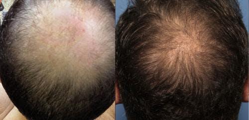 NeoGraft Hair Restoration Gallery - Patient 58214327 - Image 3