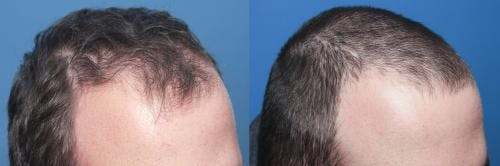 PRP Hair Treatments Gallery - Patient 58214328 - Image 1