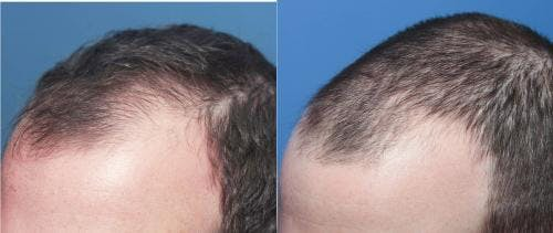 PRP Hair Treatments Gallery - Patient 58214328 - Image 2
