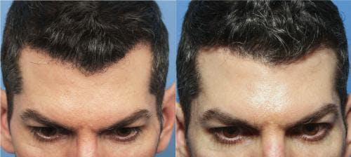 NeoGraft Hair Restoration Gallery - Patient 58214330 - Image 1