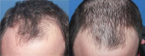 PRP Hair Treatments Gallery - Patient 58214328 - Image 3