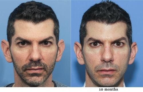 NeoGraft Hair Restoration Gallery - Patient 58214330 - Image 2