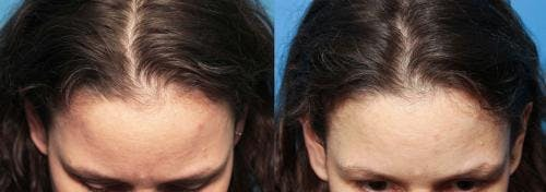 PRP Hair Treatments Gallery - Patient 58214331 - Image 2