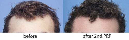 PRP Hair Treatments Gallery - Patient 58214336 - Image 1