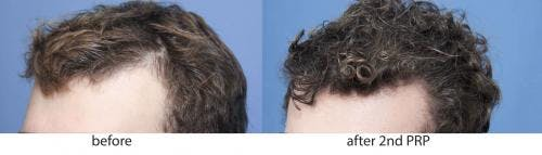 PRP Hair Treatments Gallery - Patient 58214336 - Image 2