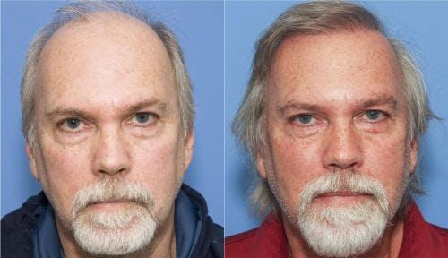 NeoGraft Hair Restoration Gallery - Patient 58214337 - Image 1