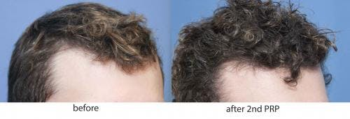 PRP Hair Treatments Gallery - Patient 58214336 - Image 3