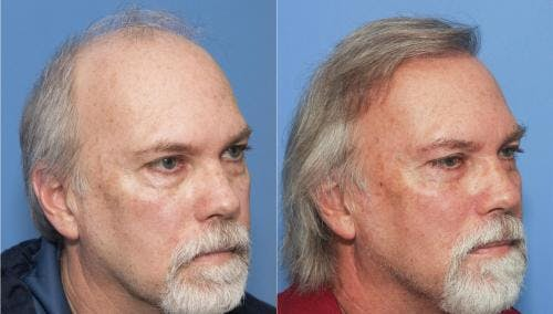 NeoGraft Hair Restoration Gallery - Patient 58214337 - Image 2