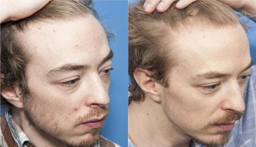 PRP Hair Treatments Gallery - Patient 58214338 - Image 2