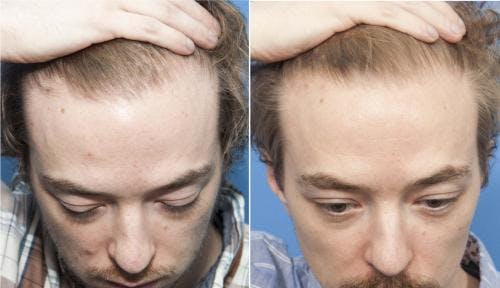 PRP Hair Treatments Gallery - Patient 58214338 - Image 3