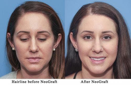 NeoGraft Hair Restoration Gallery - Patient 58214339 - Image 1