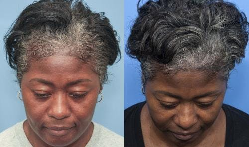 PRP Hair Treatments Gallery - Patient 58214340 - Image 1